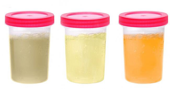 Urina na coágulos visíveis sanguíneos